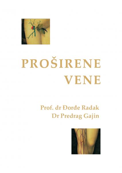 Proširene_vene